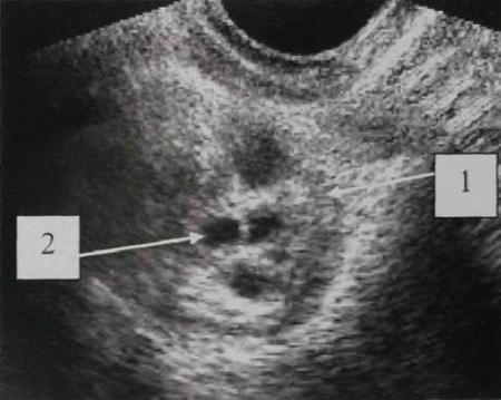 выборе расшифровка узи при раке яичников стирки